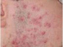 Acne - Before